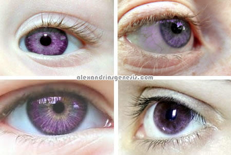 Alexandrias Genesis Purple Eyes Syndrome Pictures